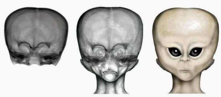 El niño de las estrellas: un cráneo con origen desconocido